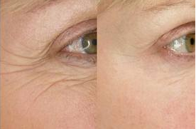 Dark-circles-and-puffiness-reduce