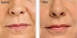 Firm-Lift-Tighten-Wrinkled-Skin-Naturally-With-Lifecell