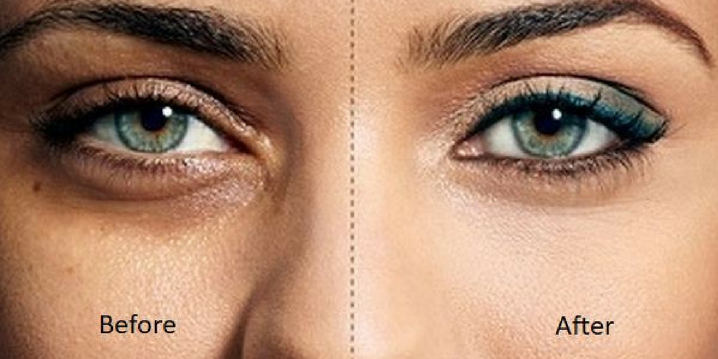 Remove dark circles naturally